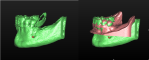 Radiografia en 3D amb escàner CBCT
