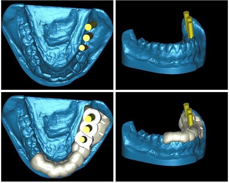 Mitjançant un programari dental es planifica la intervenció prèviament