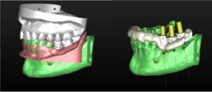 Mediante un software es posible combinar los datos del hueso obtenido en el escáner 3D CBCT y la información de la prótesis