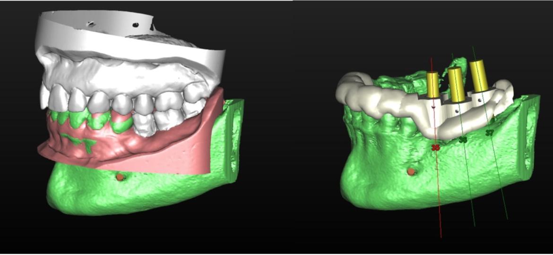 Es posible combinar los datos del hueso obtenido en el escáner 3D CBCT