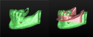 radiografía en 3D con un escáner CBCT