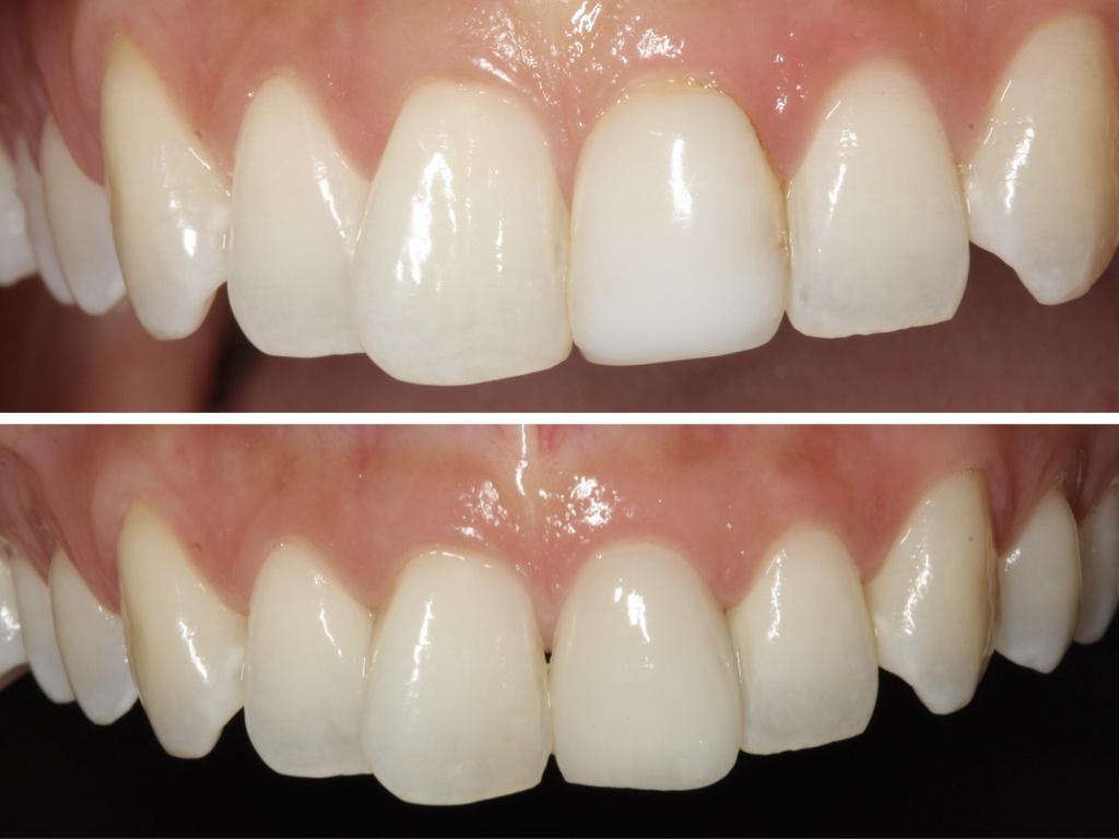 Foto abans i després d'un tractament mínimament invasiu amb una carilla dental a les peces centrals.