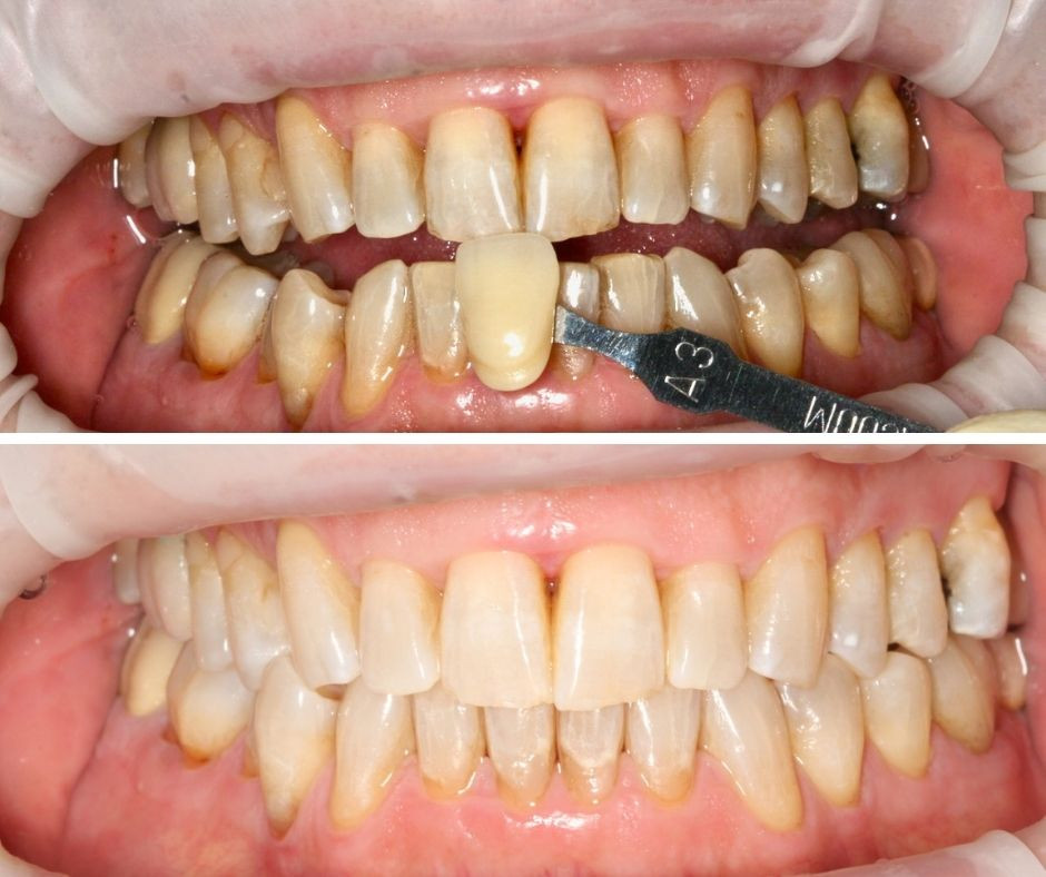 Resultados de un blanqueamiento dental en consulta