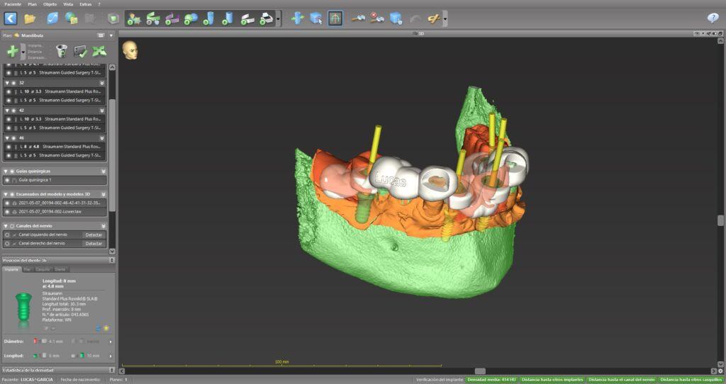 Planificación en 3D de los implantes dentales con cirugía guiada